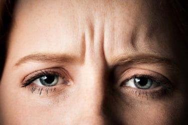 Vrouw fronst haar voorhoofd Close-up van fronsrimpels.