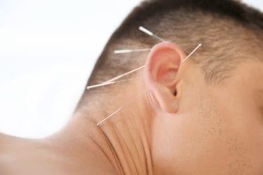 Man ondergaat een behandeling oor acupunctuur