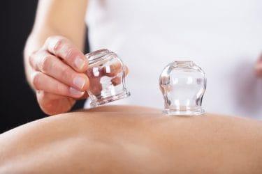 massagetherapeut maakt gebruik van vacuum cups als effectieve massagetools.