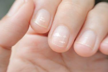 De oorzaken van witte vlekjes op je nagels.