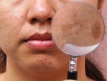 tips voor pigmentvlekjes verminderen.